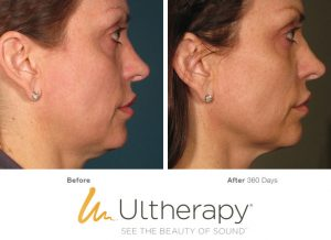 Non-Surgical Face Lift? | Face & Body Boutique | Ultherapy