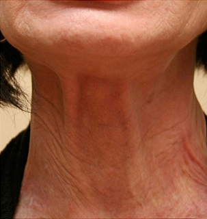 1.-botox-met-peeling-before-botox3