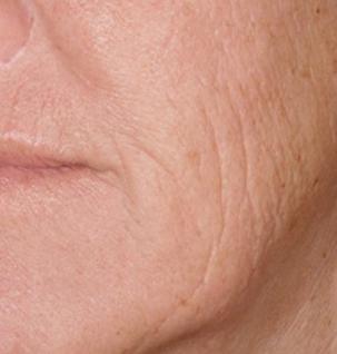 2.-fillers-oppervlakkige-rimples-before-2