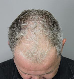 XL Hair door internationale experts