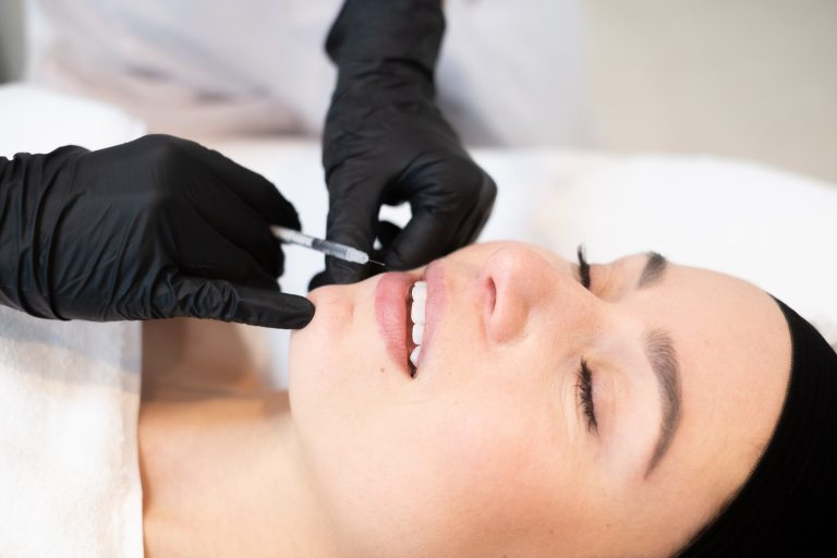 Lipfillers bij Face Body Boutique kliniek amsterdam