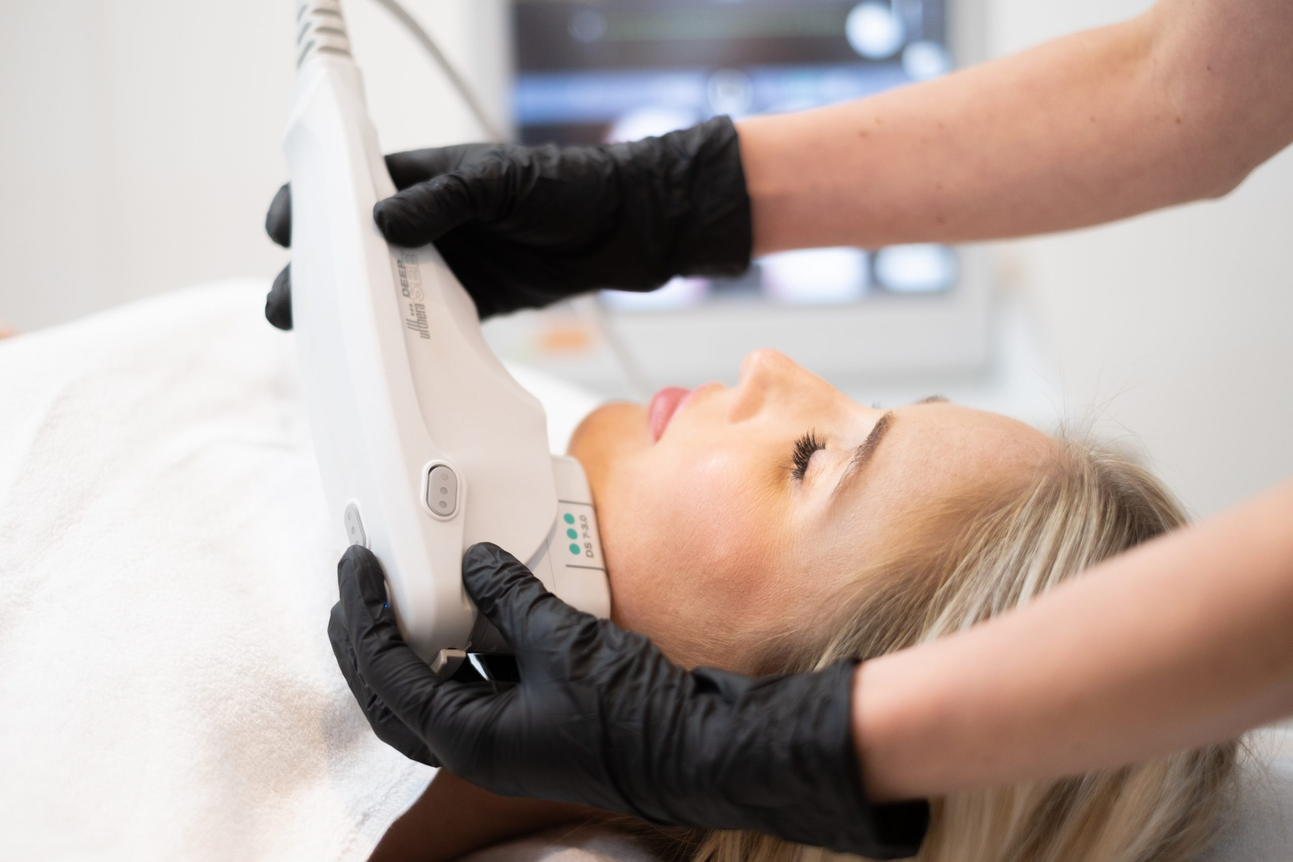 Ultherapy Amsterdam
